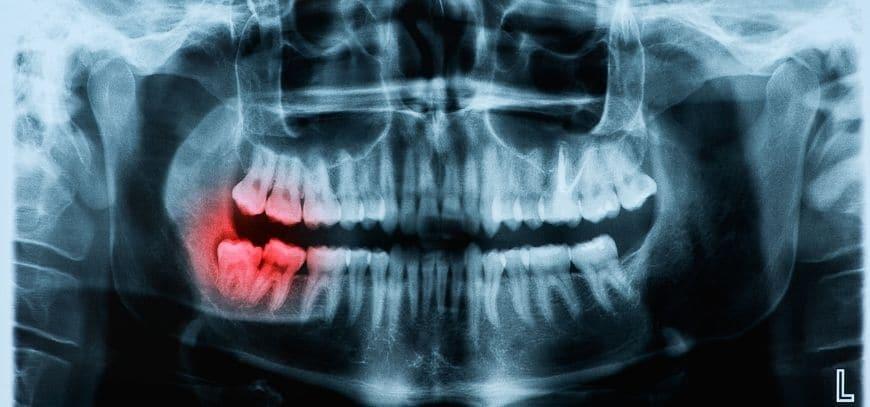 Röntgenbild mit 20 Zähnen