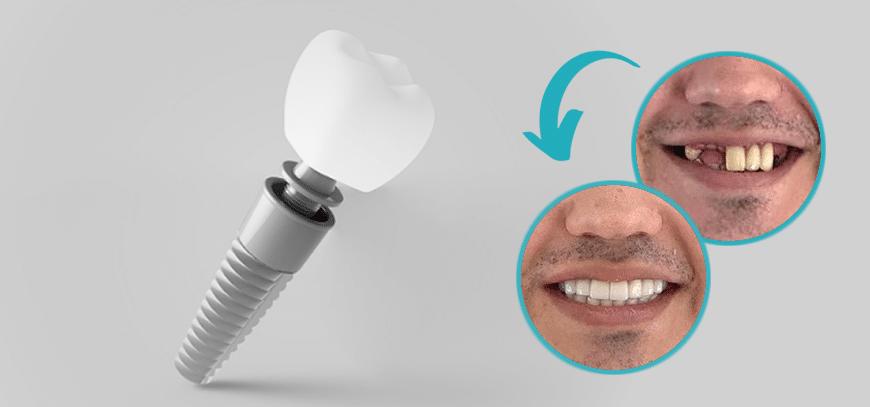 3D-Bild implantieren und vorher und nachher