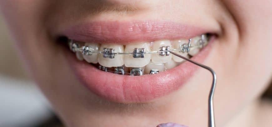 eine Frau mit Zahnspange