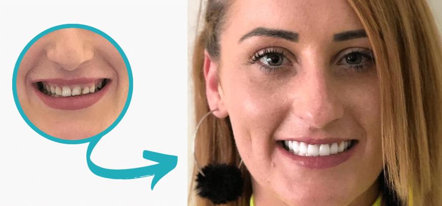 Ergebnis vor und nach dem Lächeln Design