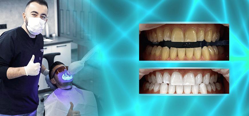vor und nach dem Aufhellen der Laserzähne