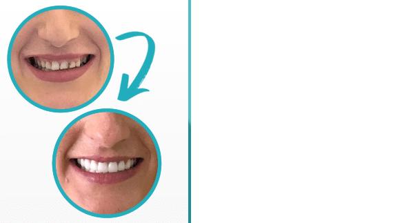 résultat avant et après la conception du sourire