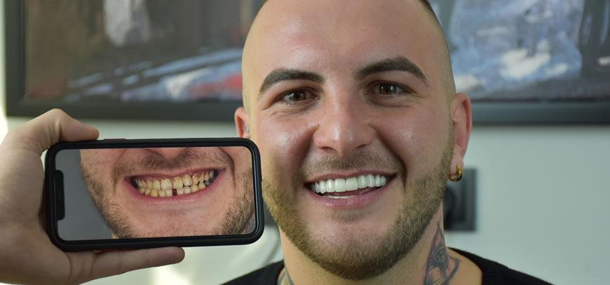 patients is smiling after zirconia treatment