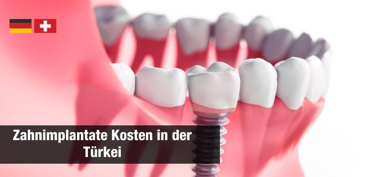 Wie viel kosten Zahnimplantate?
