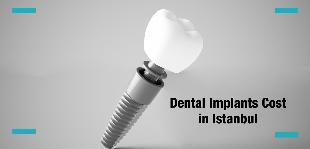 implant 3d looking