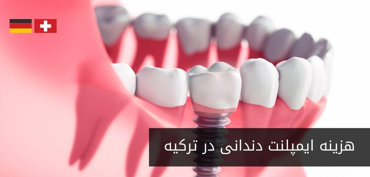 ایمپلنت دندانی چقدر هزینه دارد؟