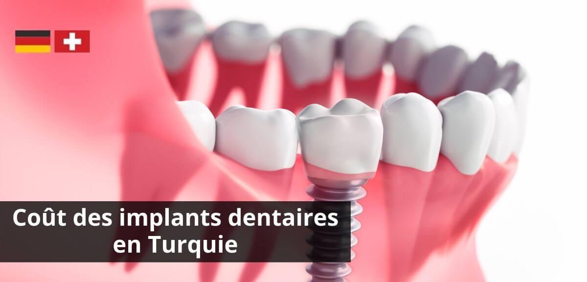 Combien coûtent les implants dentaires ?
