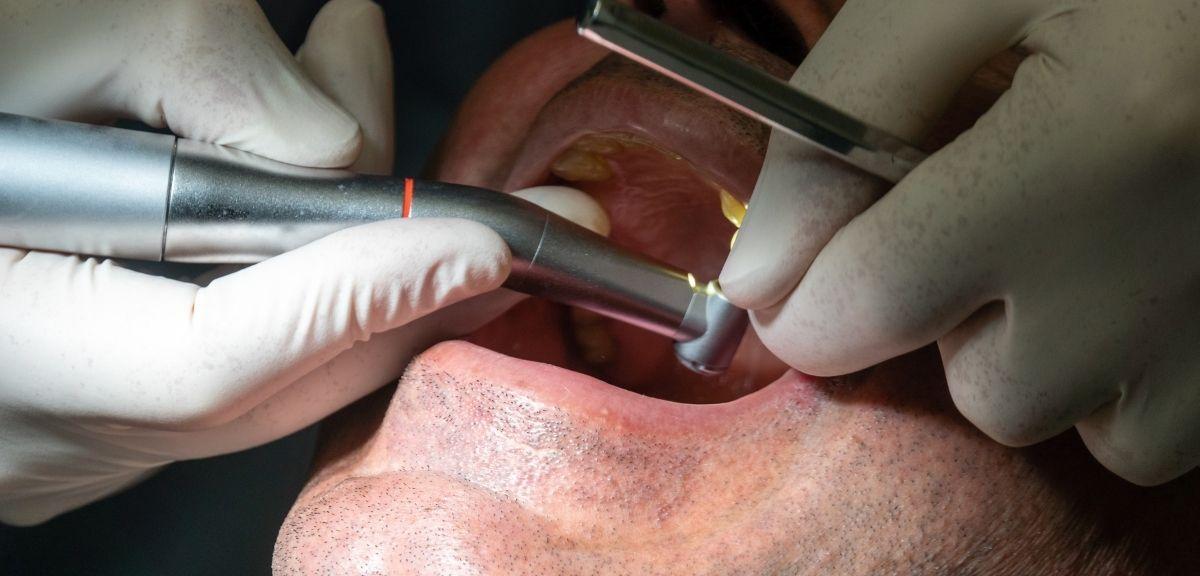 dental implant performing